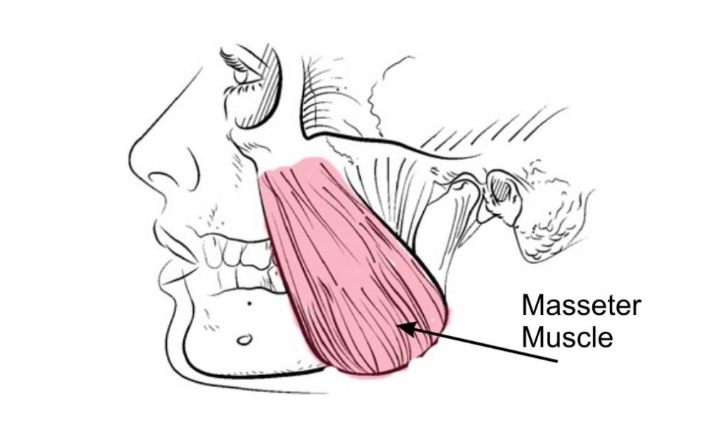 masseter muscle