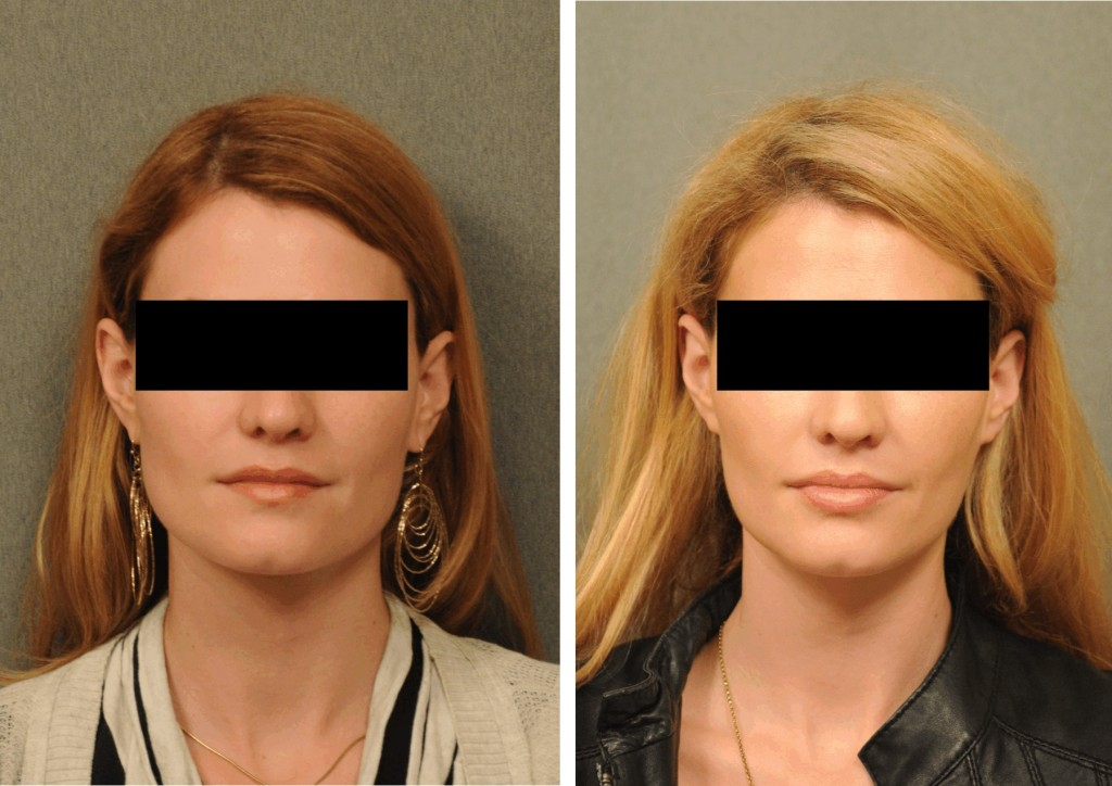 Jaw reduction  Dysport Changes Plastic Surgery