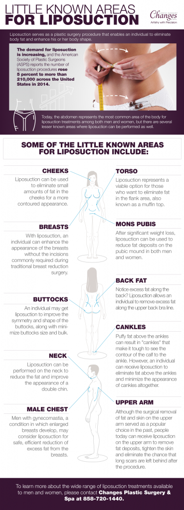 Liposuction Infographic