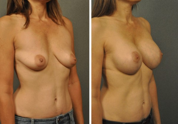 Breast Augmentation with Vertical Mastopexy 21213b