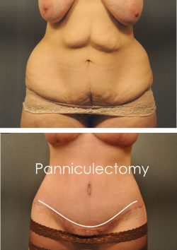 before and after panniculectomy