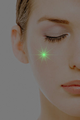 Green laser for facial redness