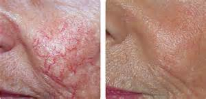 Before and after KTP laser San Diego