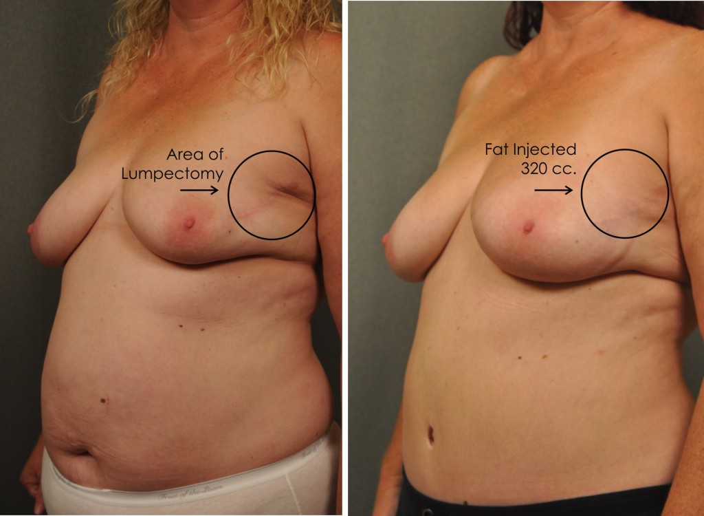 Breast Reconstruction with Brava Expansion and Fat Grafting 2