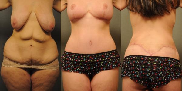 Body Lift w Beltlipectomy