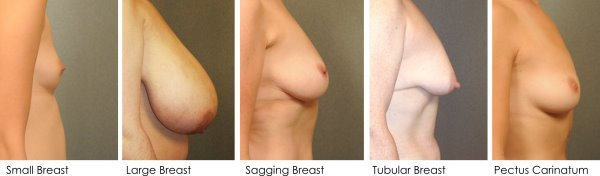 best normal breast shapes