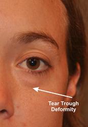 tear trough deformity