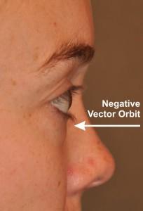 Negative Vector Orbit
