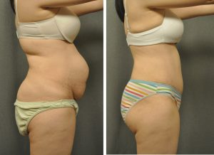 Abdominoplasty with Liposuction of the Back 21508 (2)
