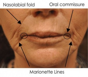Aging mouth signs