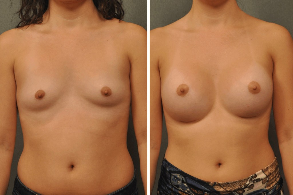 Breast Augmentation with Silicone Round Implants 21747