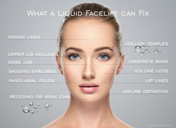 Areas for a Liquid Facelift