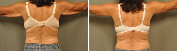 Arm Lift Brachioplasty San Diego Blog