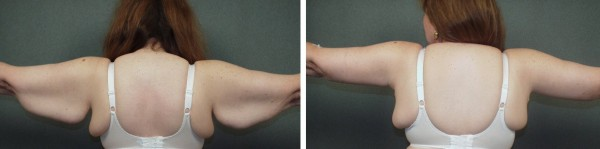 Arm Lift (Brachioplasty) blog