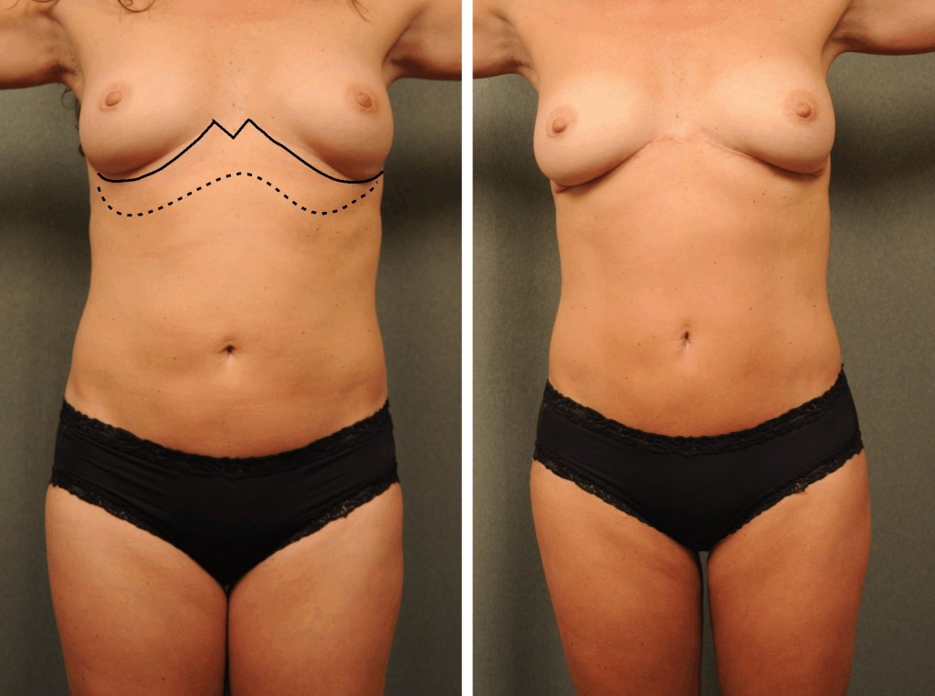Reverse abdominoplasty specialists
