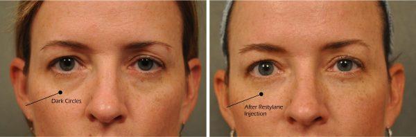changes-plastic-surgery-under-eye-treatment