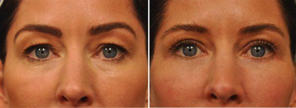 Upper and Lower Eyelid Surgery (Blepharoplasty)