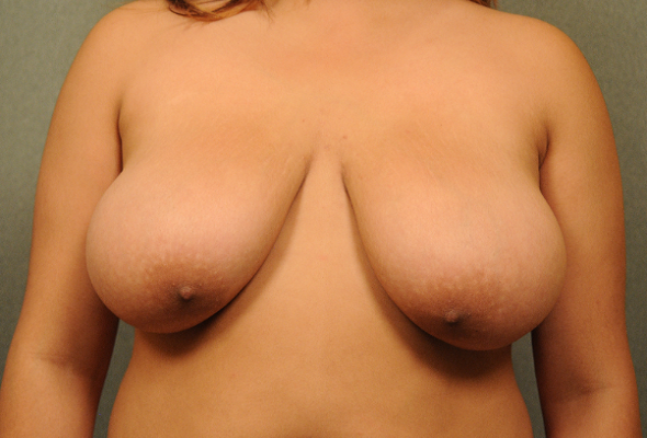 large breasts before