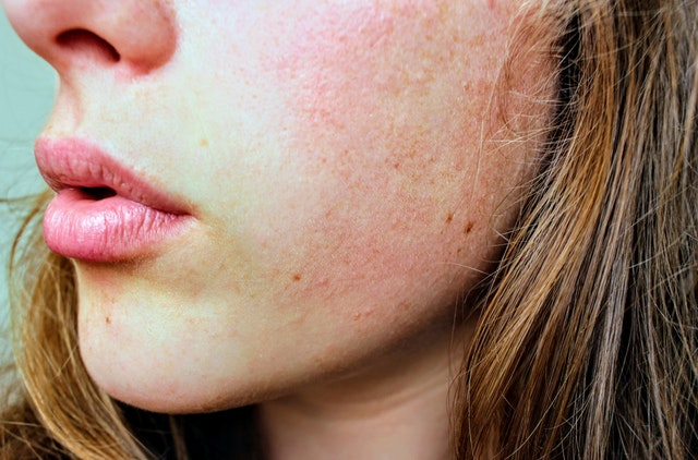 Natural Remedies for Acne and Rosacea   Eidon Ionic Minerals