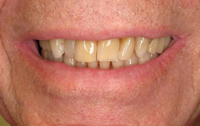 the picture of girl's teeth for before TEETH NEXT DAY
