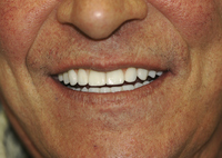 Close view of lower half of a man's face showing his bright smile.