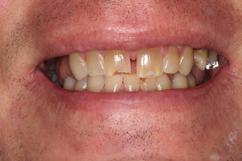 the picture of man's teeth for before ZIRCONIA IMPLANT BRIDGE