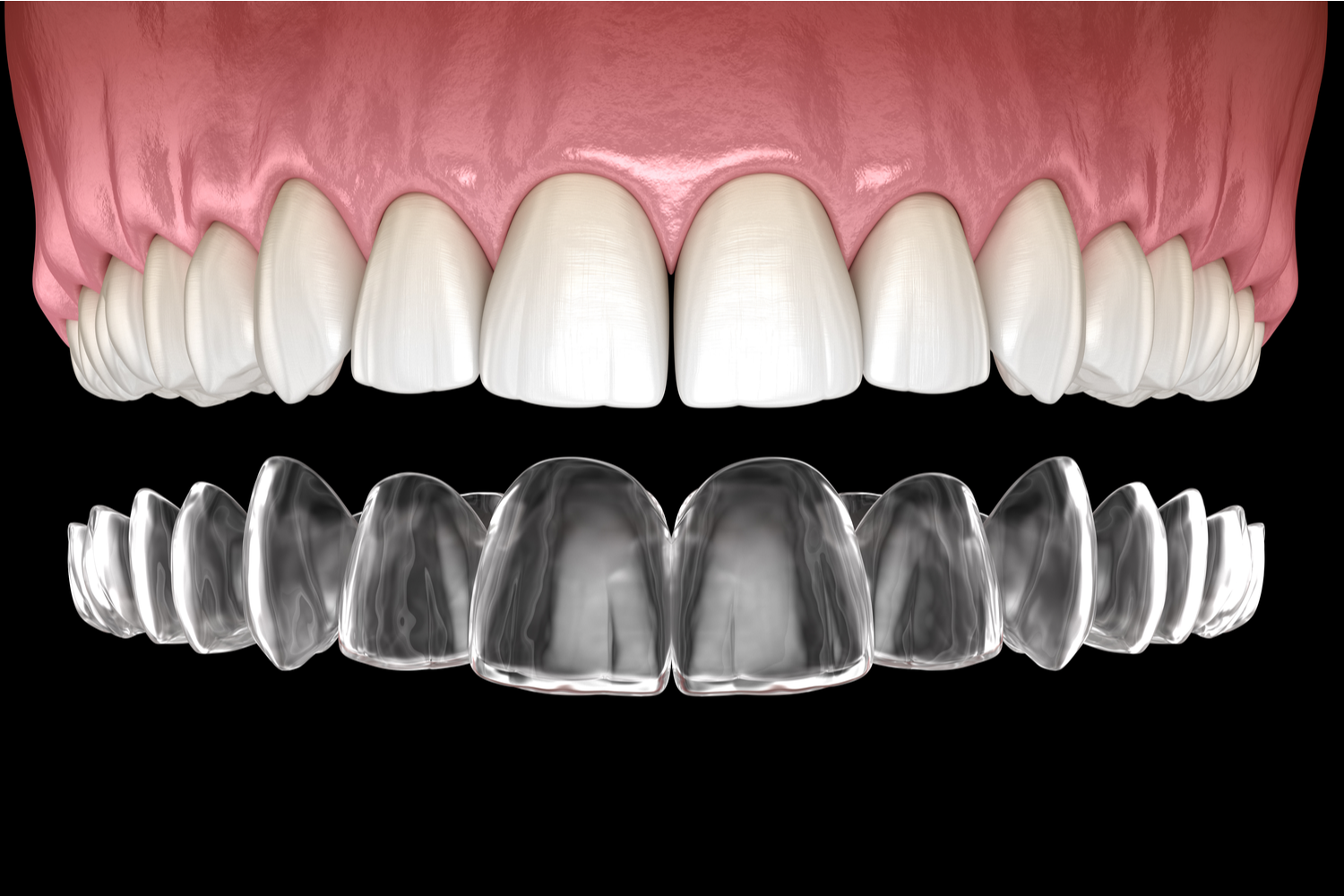 How Affordable Is Invisalign®?