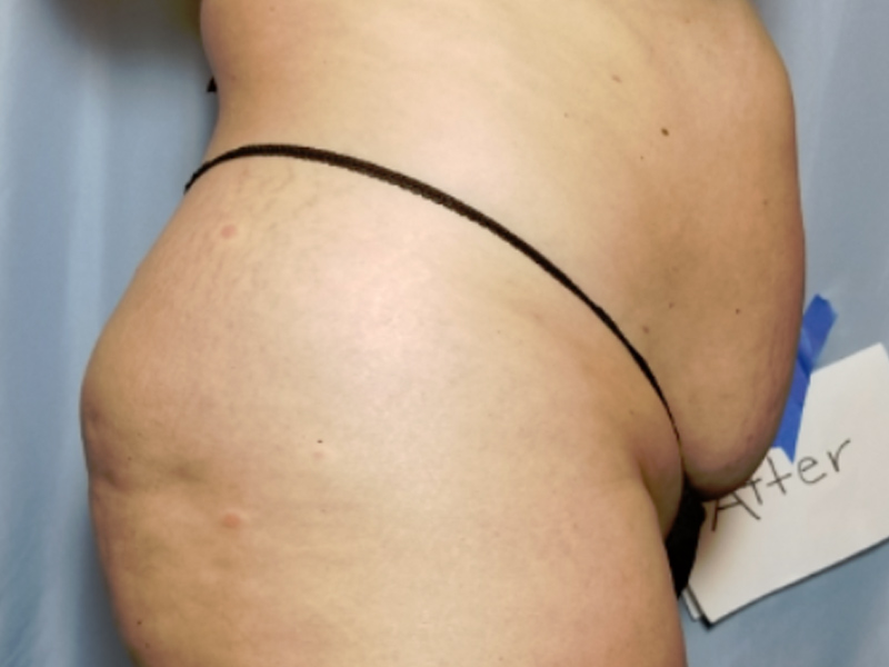 after laser lipo