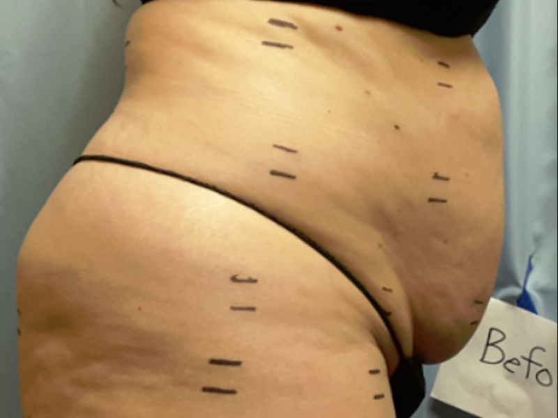 Before laser lipo