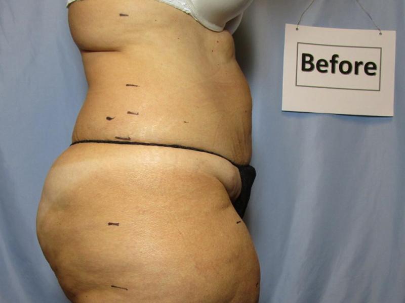 Laser Liposuction Before