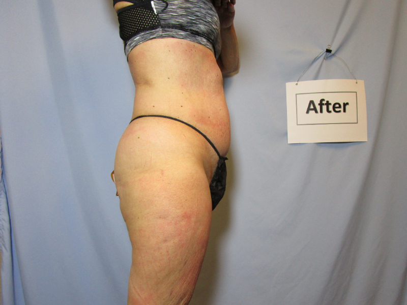 Laser Liposuction After