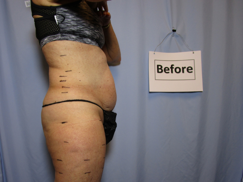Laser Liposuction Before