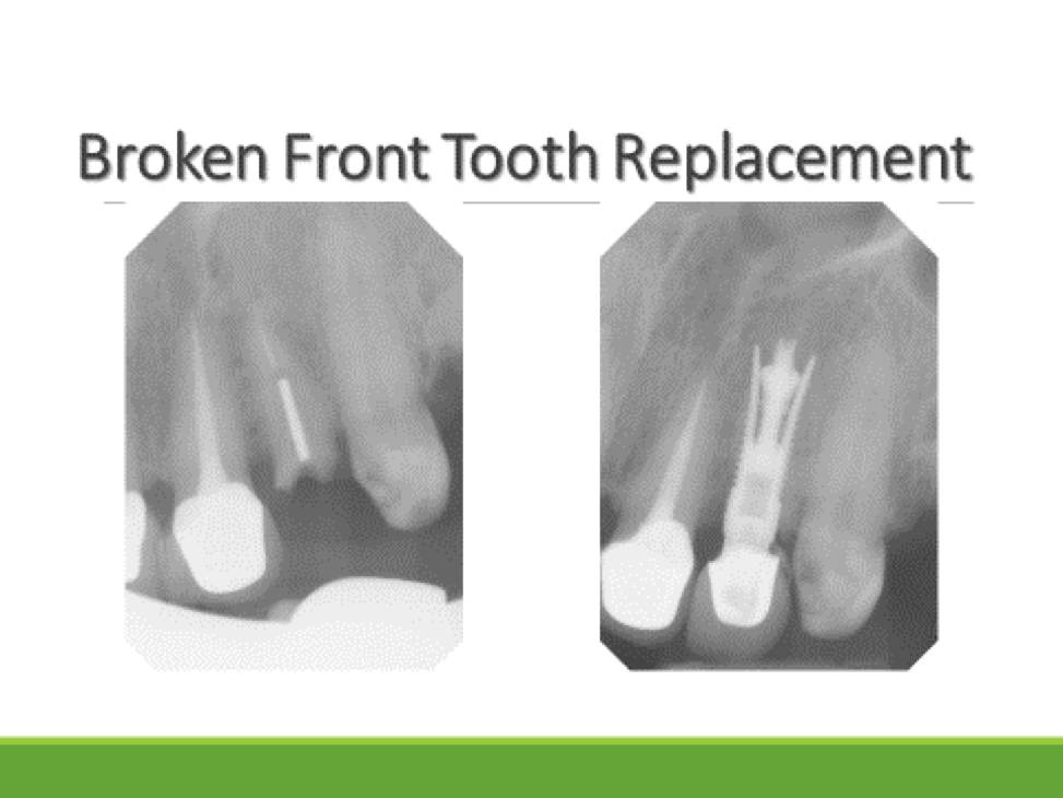 broken front tooth replacement