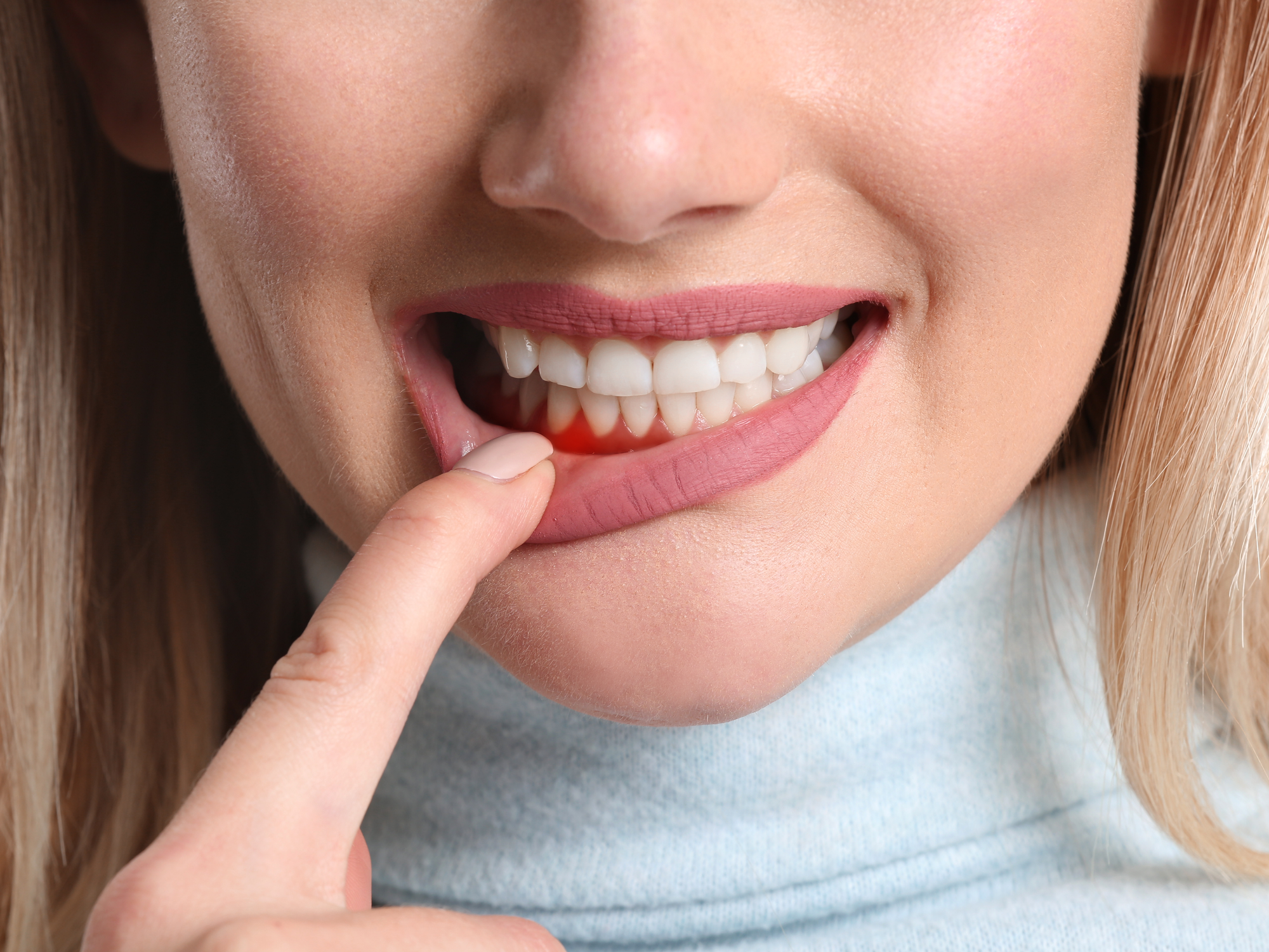 Most Common Signs of Periodontal Disease