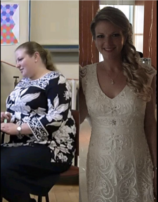 Stephanie's Before and After