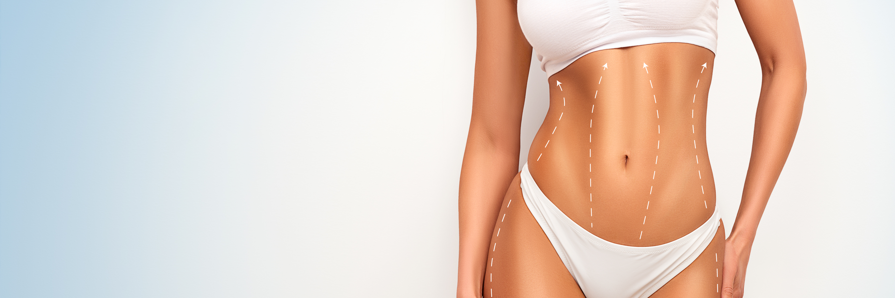 Liposuction FAQs
