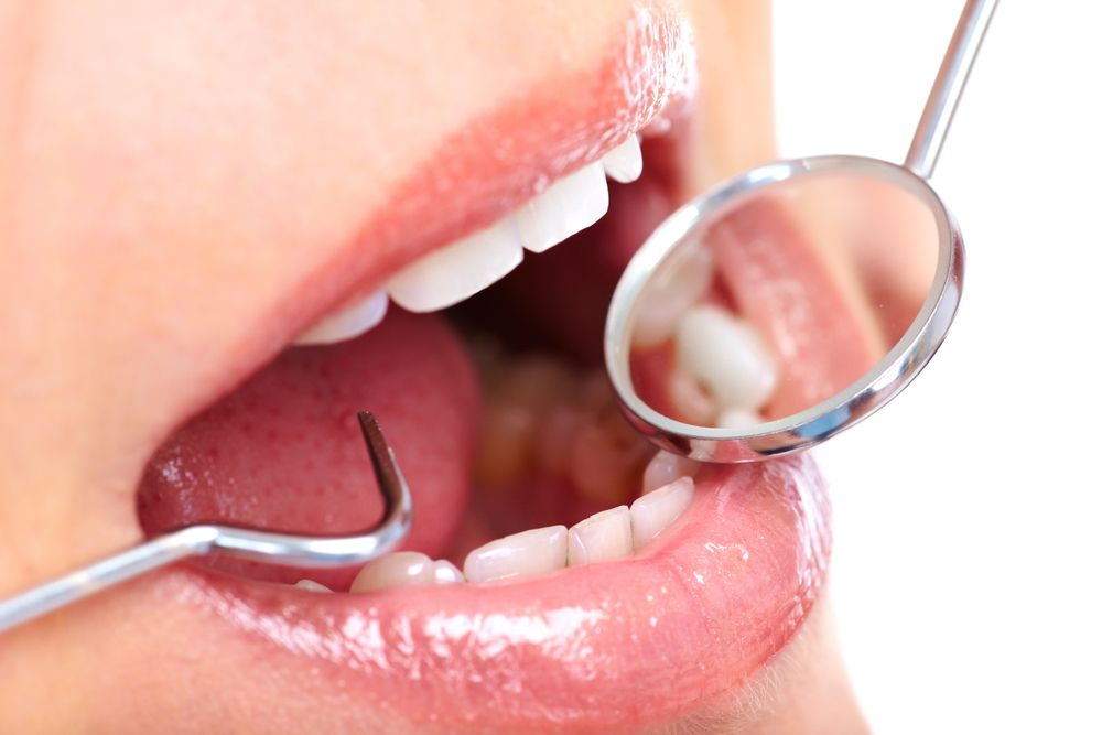 Dry Mouth Causes and Treatments