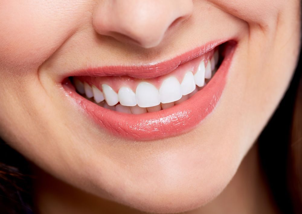 What to Do When it's Time for Porcelain Veneers Replacement