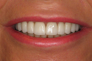 After Cosmetic Porcelain Veneers