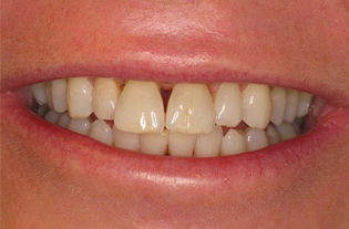 Before Cosmetic Porcelain Veneers