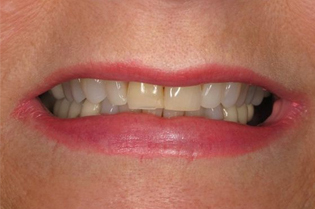 Before Full Mouth Restoration