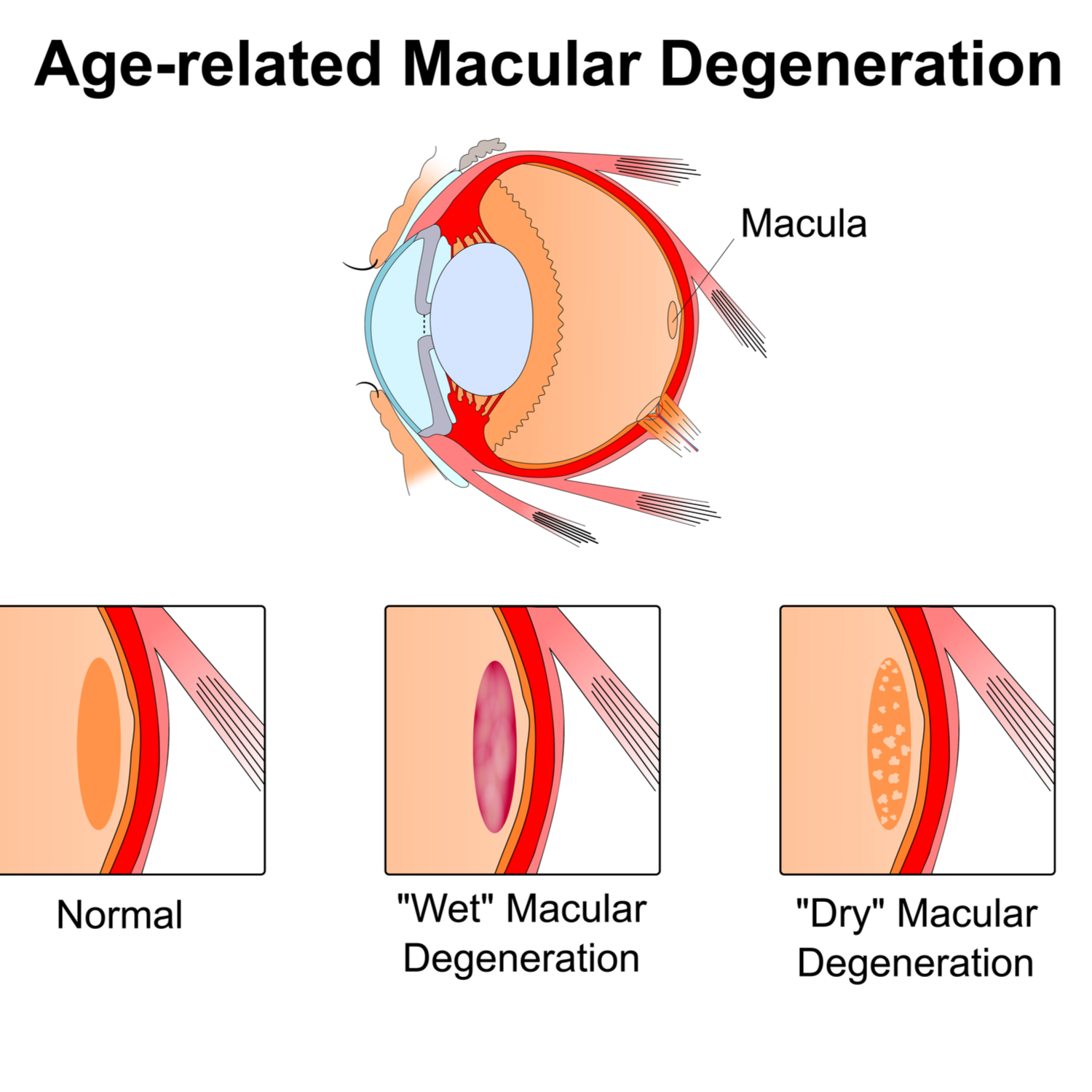 Diagnosing and Care for Macular Degeneration