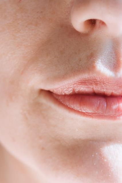 Salem, NH - Lip treatment initiates with a consultation with the client, regarding the shape and color of their own choice.