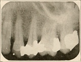 Auburn, AL - WHITE FILLINGS