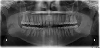 Bon Secour, AL - FULL MOUTH X-RAY