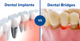 Orange Beach, AL - ADULT TEETH CLEANING UPDATED DIGITAL XRAYS EXAM DISCUSSED WHITENING DISCUSSED INVISALIGN ELECTRIC TOOTHBRUSH EXTRACTIONS IMPLANT BRIDGE