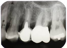 Spanish Fort, AL - EXAM FULL MOUTH X-RAY DIGITAL X-RAY ADULT TEETH CLEANING WHITE CROWN BUILD UP MEDICATED MOUTH RINSE CROWN DELIVERY