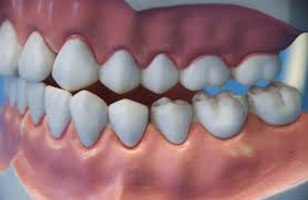 Mobile, AL - DEEP TEETH CLEANING