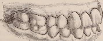 Silverhill, AL - ADULT TEETH CLEANING EXAM DIGITAL XRAYS DISCUSSED FLOSSING, ELECTRIC TOOTH BRUSH, WHITENING, AND INVISALIGN WHITE CROWN ROOT CANAL LASER THERAPY