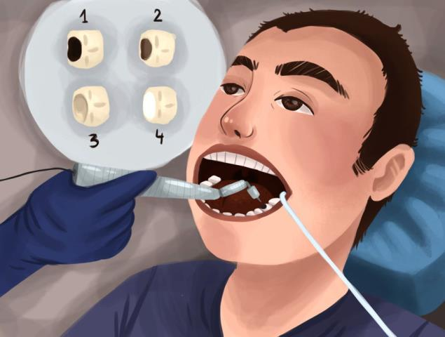 Seminole, AL - ADULT TEETH CLEANING DIGITAL XRAYS EXAM DISCUSSED USING ELECTRIC TOOTHBRUSH AND FLOSS WENT OVER INVISALIGN AND ZOOM WHITENING TREATMENT OF DECAY WITH WHITE FILLINGS